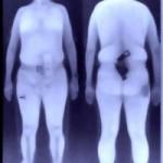 Full Body Scans